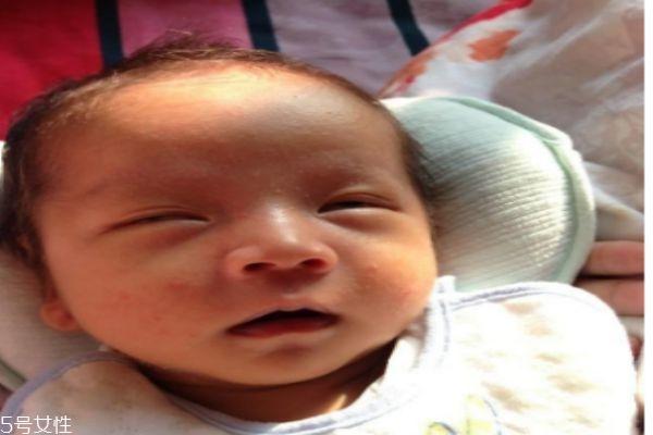 为什么新生儿的皮肤是皱巴巴的呢 新生儿不哭怎么办呢