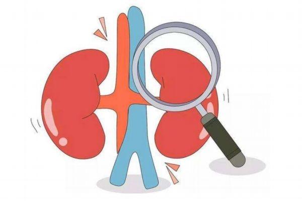 肾结石平常注意什么 肾结石饮食禁忌