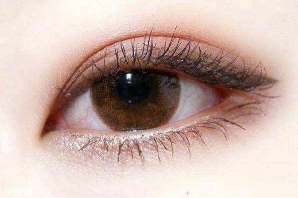 内双割双眼皮容易吗 割双眼皮有什么注意的呢