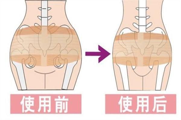 产后胯骨变宽怎么恢复 产后简单瘦身方法有哪些