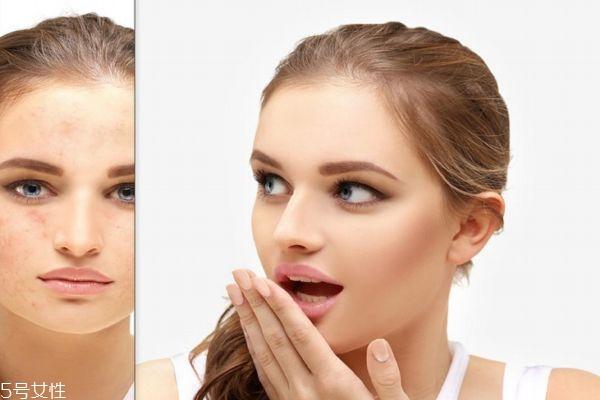 什么皮肤容易长痘痘呢 如何预防痘痘呢