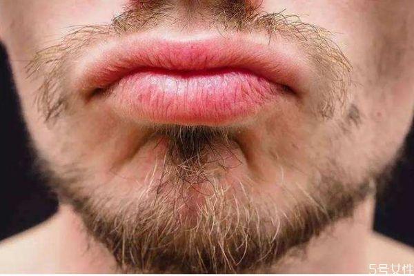 为什么女生也长胡子呢 女生鼻子下面的是胡子吗