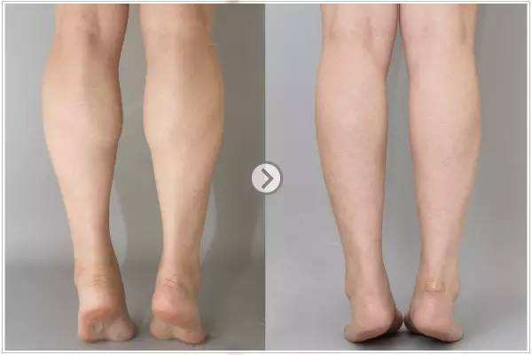 整形瘦腿的方法有哪些 大腿吸脂会影响内分泌吗