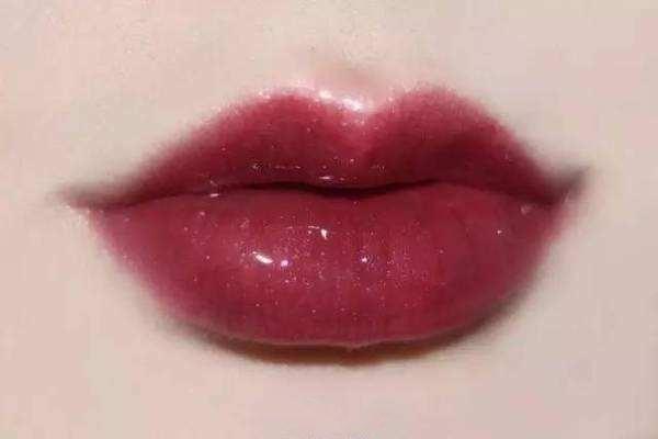 自体脂肪丰唇术效果怎么样 自体脂肪丰唇术术后护理