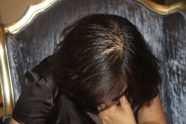 脱发是什么 成年人一天掉多少头发正常