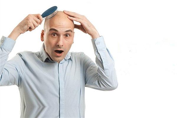 脂溢性脱发是什么 遗传性脱发是脂溢性脱发吗