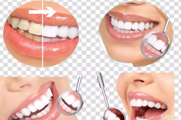 牙齿应该怎么美白呢 美白牙齿要什么方法呢