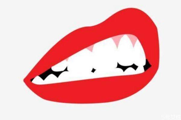 冷光美白牙齿疼吗 如何减轻冷光美白牙齿的疼痛呢