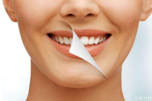 冷光美白牙齿能维持多久呢 冷光美白牙齿多久做一次呢