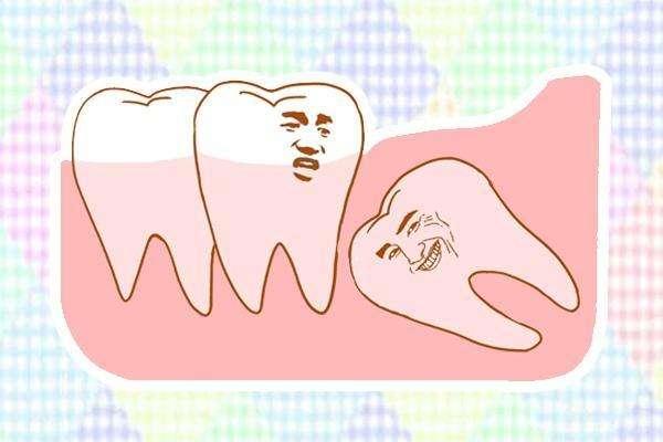 智齿一定要拔吗 拔智齿多久后可以吃东西