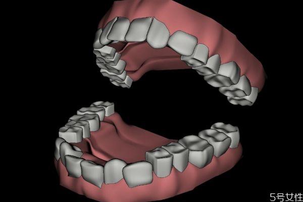 敏感牙齿怎么做脱敏治疗呢 牙齿脱敏治疗需要多少钱呢