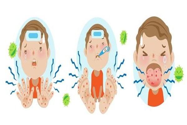 手足口病第几天最严重 手足口病第几天会慢慢好转
