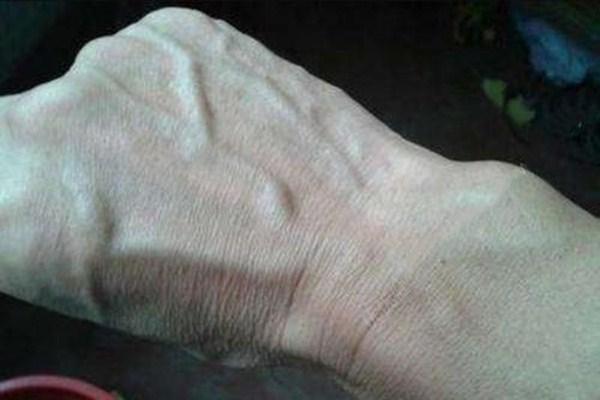 手上血管突出是怎么回事 血管粗的好还是细的好