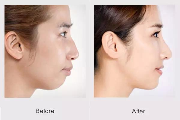 膨体隆鼻好吗 硅胶和膨体隆鼻哪个好