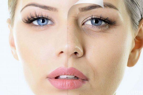 预防皱纹的方法有什么呢 如何能有效预防皱纹呢