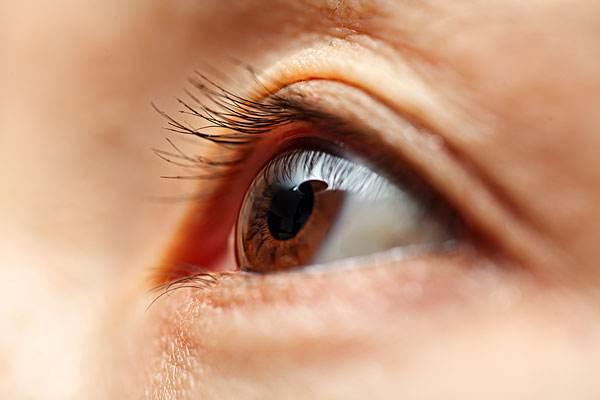 沙眼会不会传染 沙眼的治疗方法有哪些