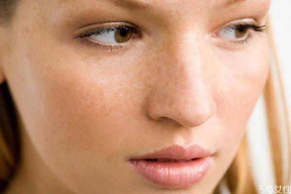 为什么有的人脸上会长斑呢 长斑是什么原因呢