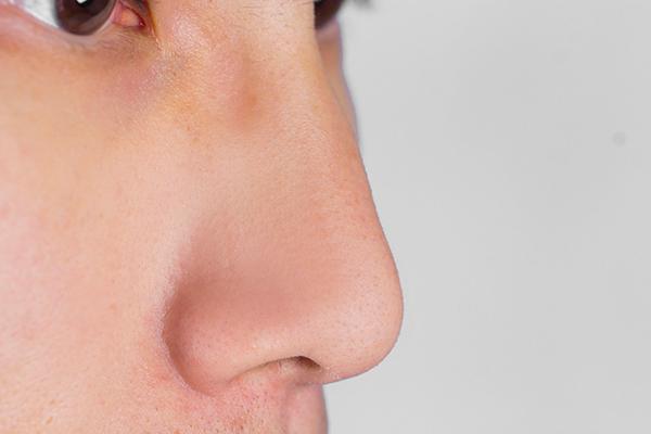 垫鼻根好吗 怎样降低垫鼻根的手术风险