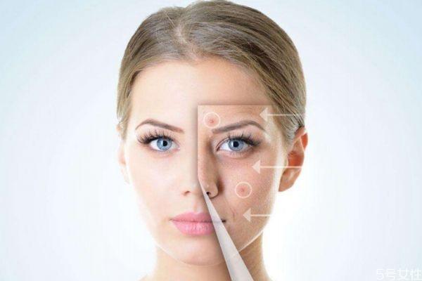 激素脸有什么危害呢 激素脸应该怎么治疗呢