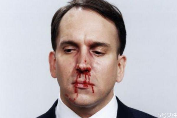鼻子出血应该怎么办呢 鼻子出血如何治疗呢