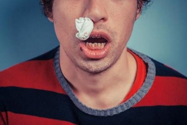 流鼻血了怎么快速止血 压力大会导致流鼻血吗