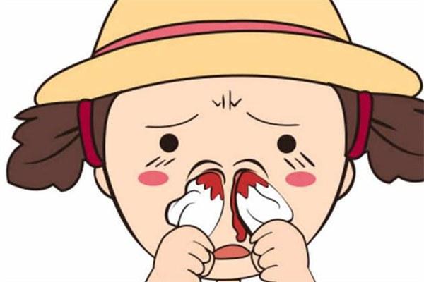 为什么会流鼻血 流鼻血止不住怎么办