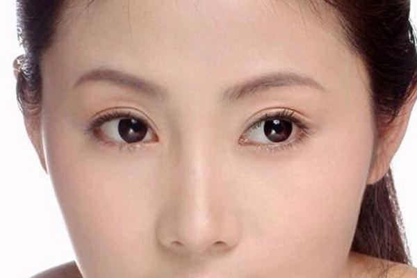 做双眼皮重睑术有什么危害 重睑术有哪些治疗方法