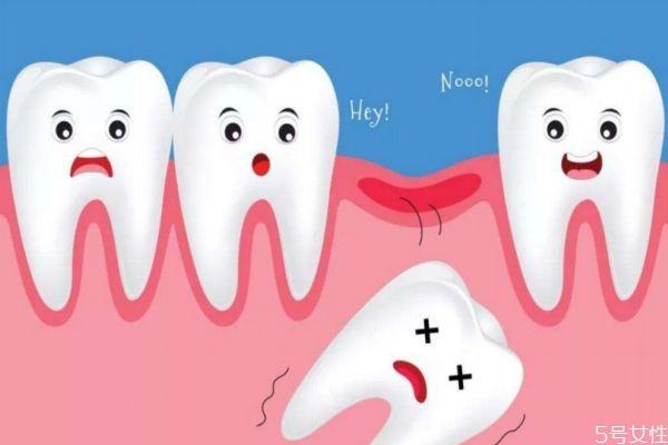 牙齿松动的原因有什么呢 为什么会牙齿松动呢