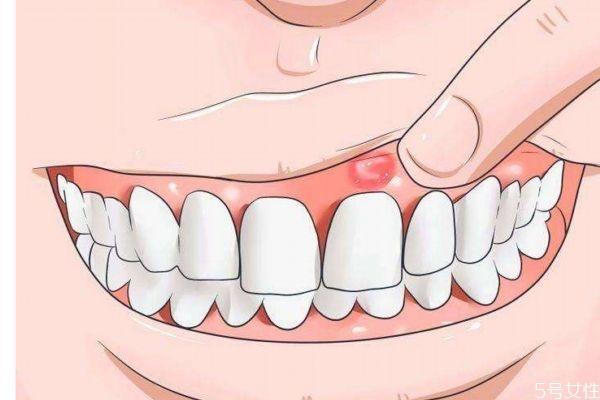 牙龈红肿是为什么呢 造成牙龈红肿的原因是什么呢