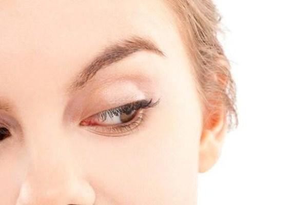 如何预防眼部皱纹 眼部皱纹形成的原因