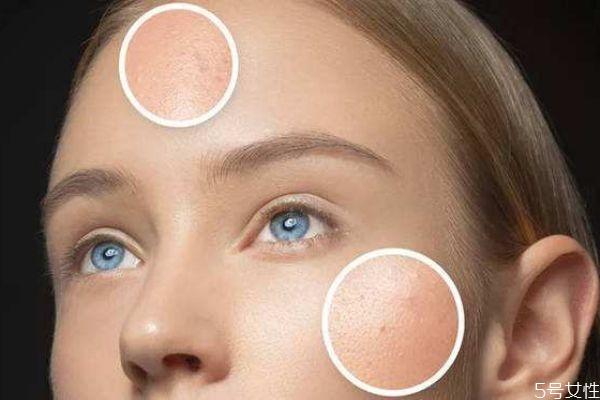 油痘皮如何护肤 油痘皮如何让皮肤变好
