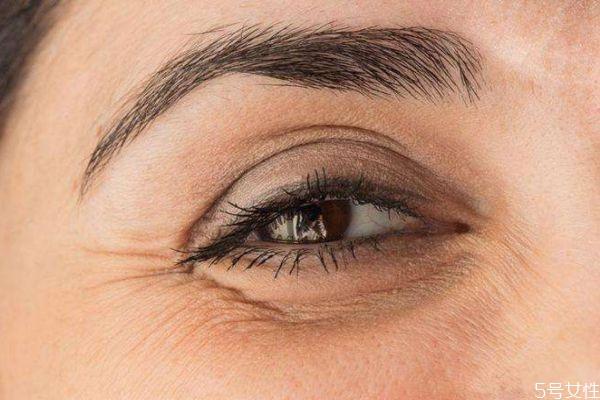 眼部细纹造成原因有什么呢 为什么会出现眼部细纹呢