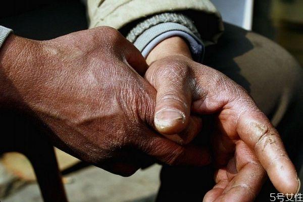 为什么手会脱皮呢 手脱皮是为什么呢