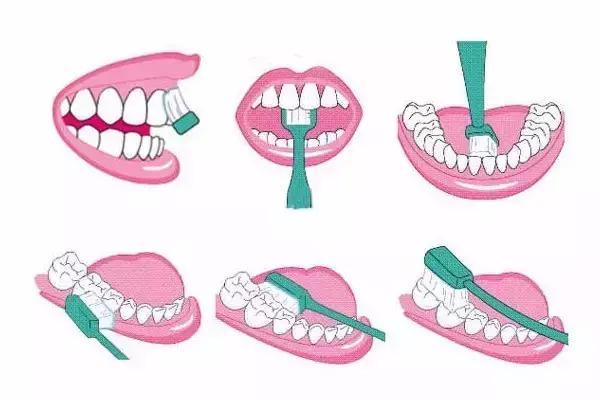 牙齿松动和什么有关 怎么预防牙齿松动