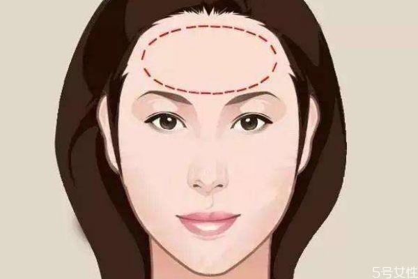 额头太大怎么办呢 为什么有的人额头比较大呢