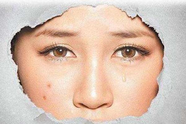 痘印消失的时间跟肤色有关吗 痘印要多久能消除