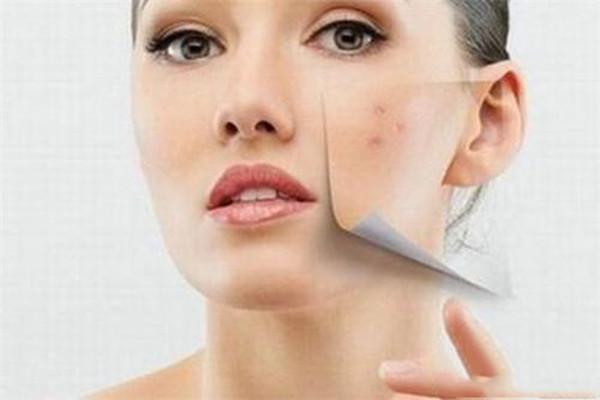 痘痘的日常预防 各种痘痘形成的原因
