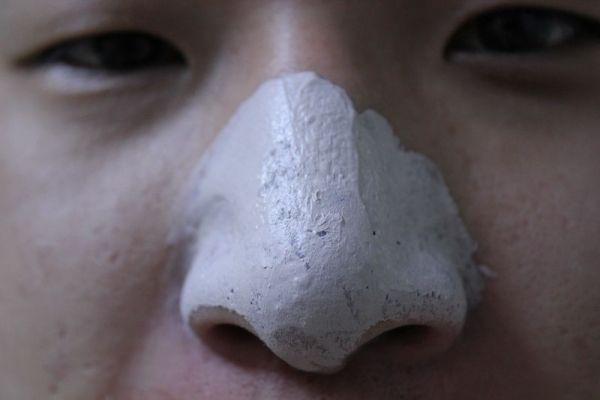 鼻子黑头怎么改善图片