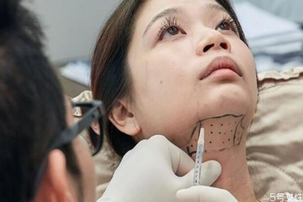 双下巴溶脂后几天看见效果 双下巴溶脂效果是永久的吗