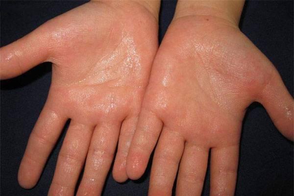 冬季手脚出汗是什么原因 冬季手脚出汗怎么调理