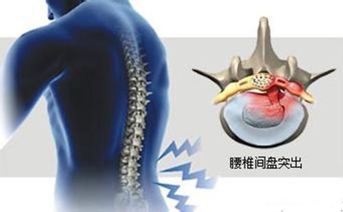 什么是腰间盘突出 腰间盘突出压迫神经腿疼怎么办