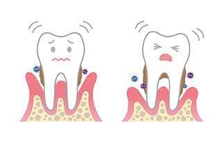 牙周炎要拔牙齿吗 牙周炎要注意什么