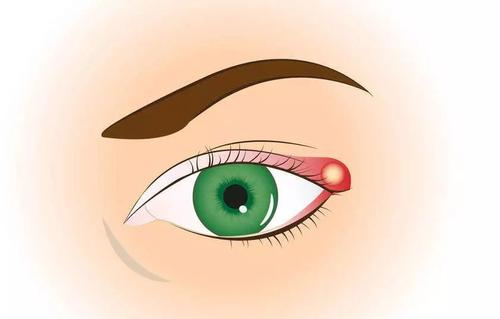 针眼化脓可以自己好吗 针眼切开排脓痛吗