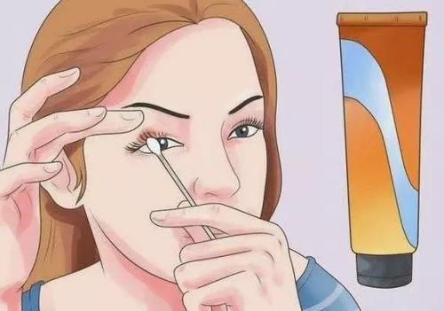 麦粒肿可以戴隐形眼镜吗 麦粒肿能传染吗
