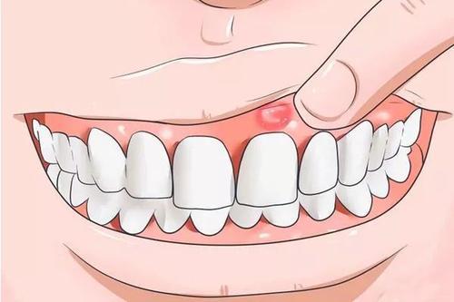 口腔溃疡能吃无花果吗 口腔溃疡为什么反复发作