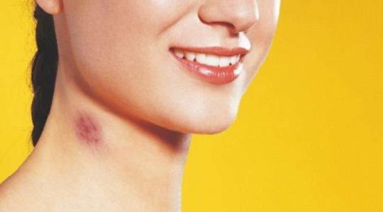 吻痕是热敷还是冷敷 吻痕多久会消失