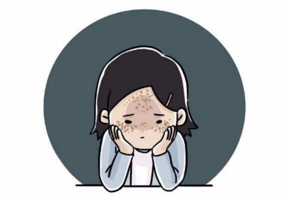 夏季预防长斑的方法 夏季应该怎么预防长斑