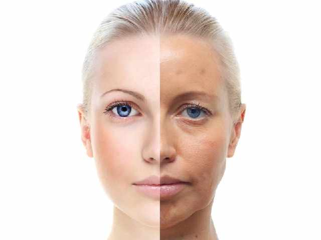皮肤暗黄是什么原因 皮肤暗黄休息可以改善吗