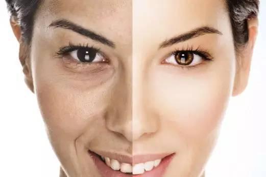 皮肤暗黄的解决办法 皮脂油腻会引起皮肤暗黄吗