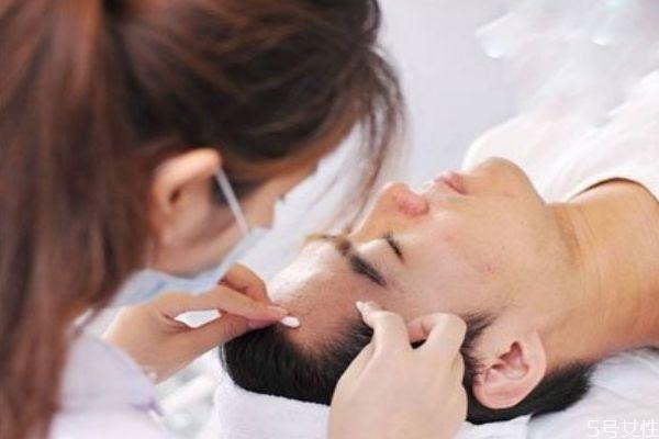 针清后需要化妆怎么办 针清后多久可以化妆